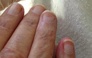 ناخن ها و سلامتی بدن